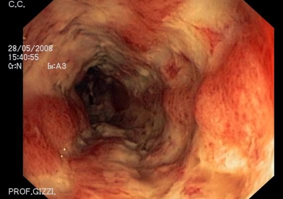 Crohn Colitis
