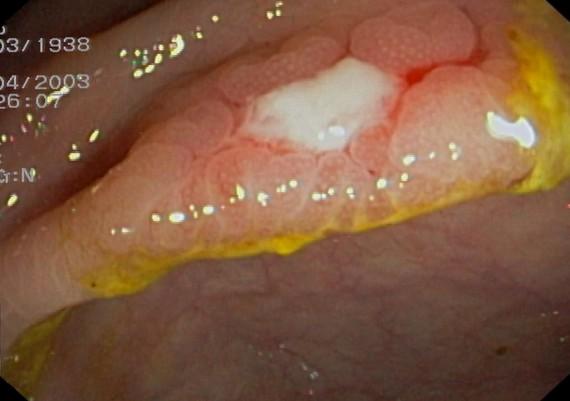 Crohn Colitis Mild