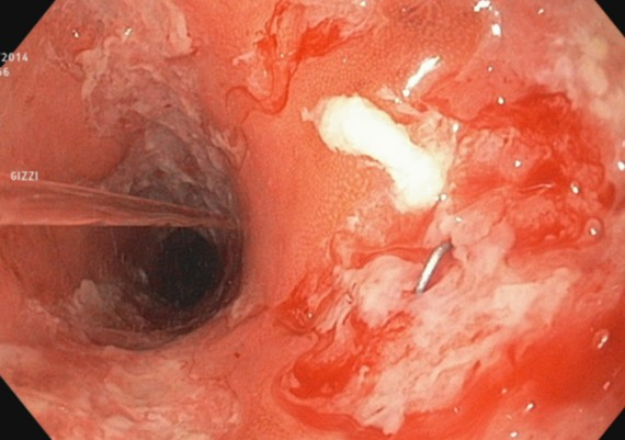 Crohn Colitis Moderate