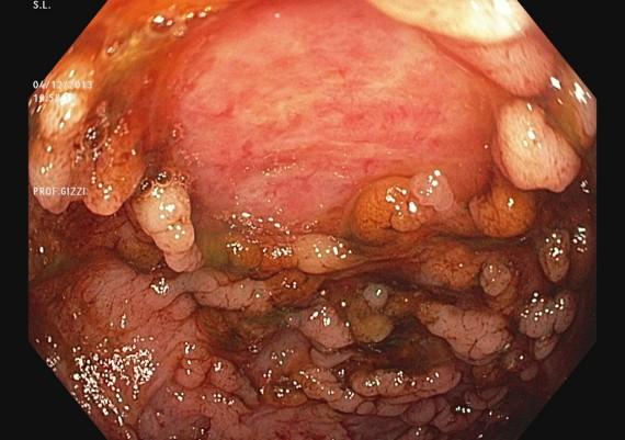 Crohn Colitis Severe