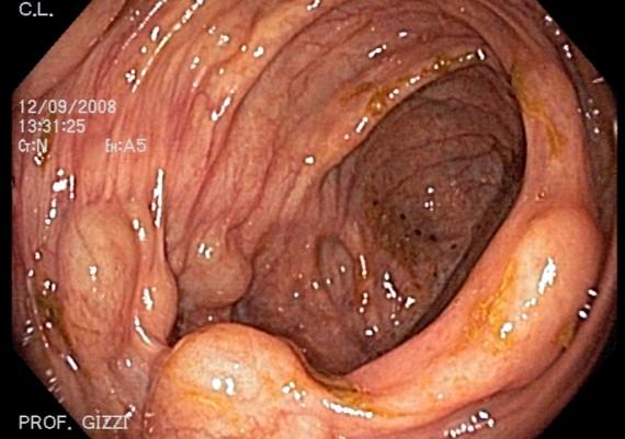 Cystic Pneumatosis
