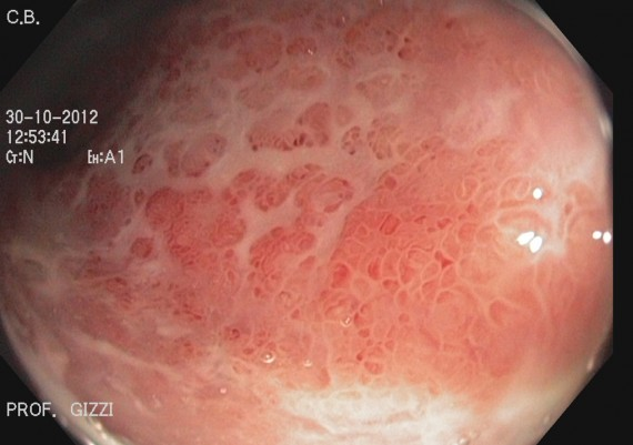 Ulcerative Colitis Close View