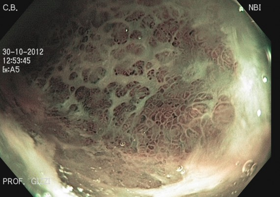 Ulcerative Colitis Close view NBI