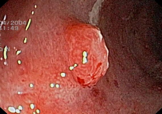 Ulcerative Colitis - Inflammatory Polyp