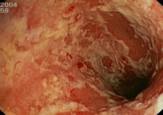 Ulcerative Colitis Severe
