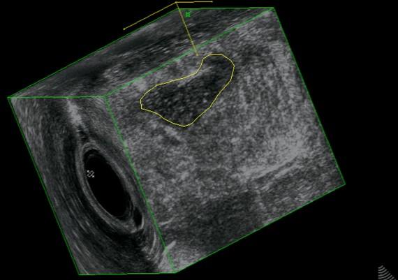 Fig. 22C