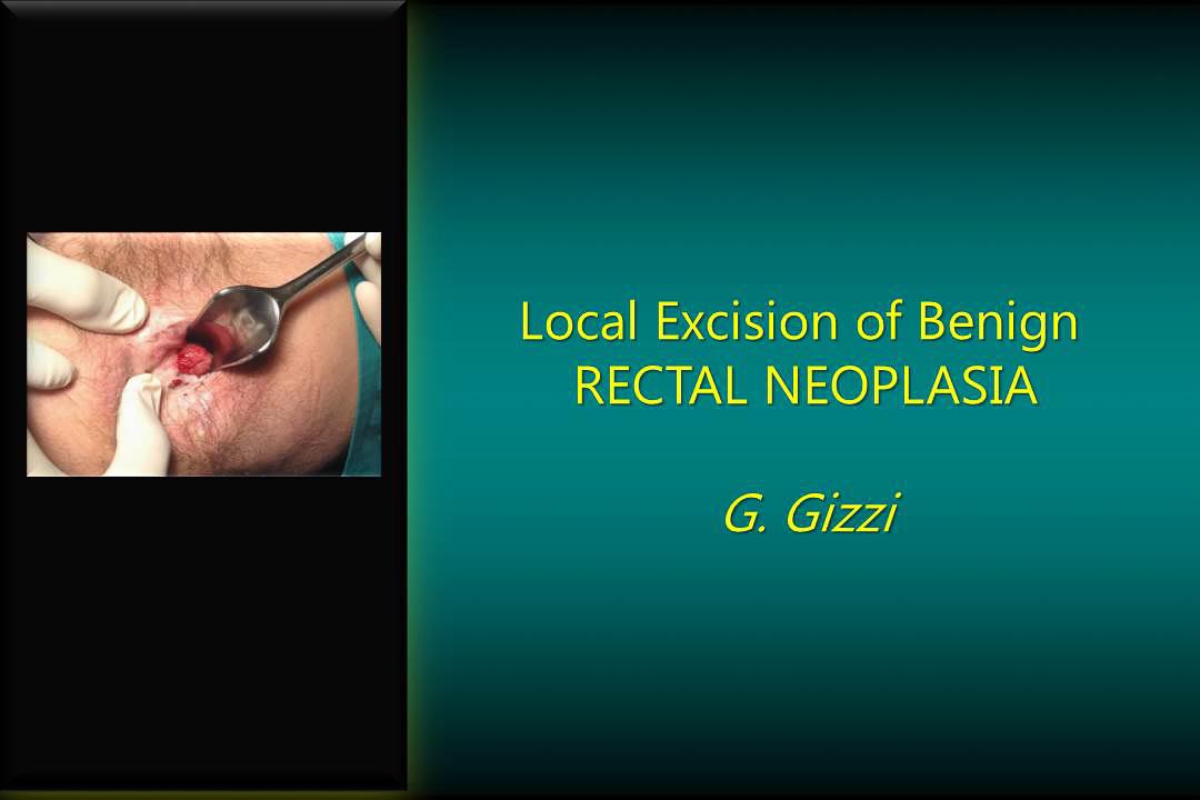 diapositiva_rectal_neoplasia_1