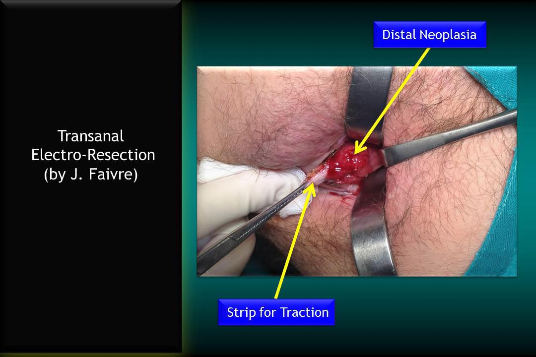 diapositiva_rectal_neoplasia_6